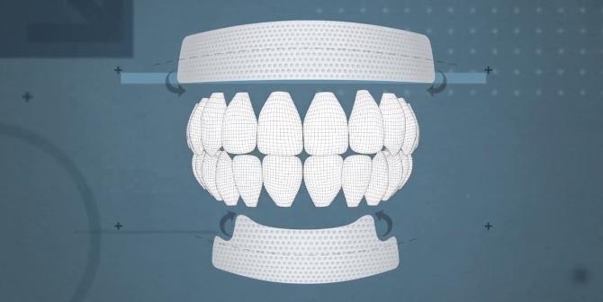 hur-fungerar-tandblekningstejp-tandblekningsstrips