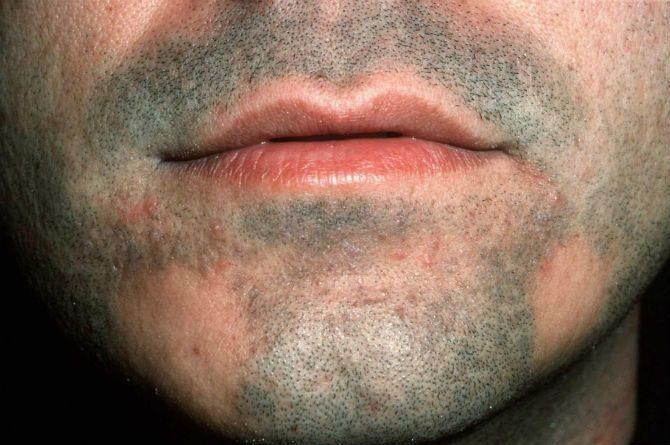 fläckvis håravfall skägg