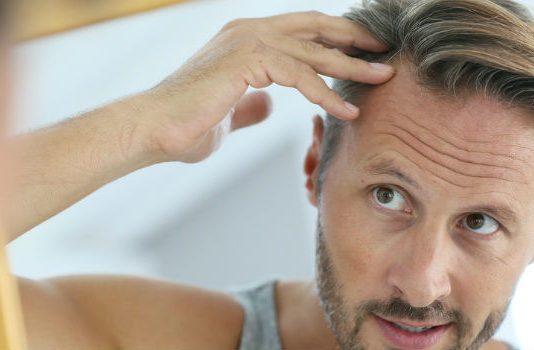 hårtransplantation guide