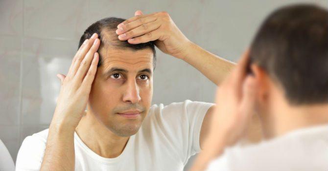 medicin mot håravfall
