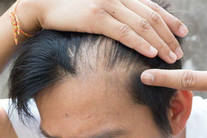 tillfälligt håravfall