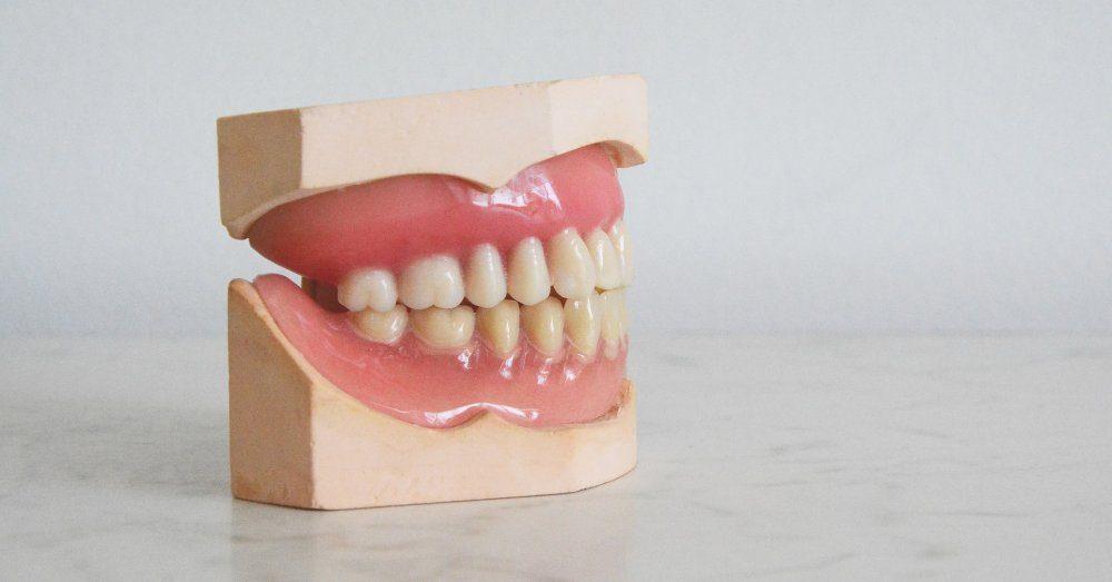 tandblekning hemma eller hos tandläkare